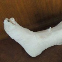 Нижегородец сломал ногу и ребро при падении в трамвае